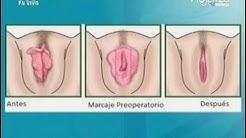 Cirugía Estética de Genitales Femeninos (METVC)