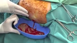 Leg infection lanced