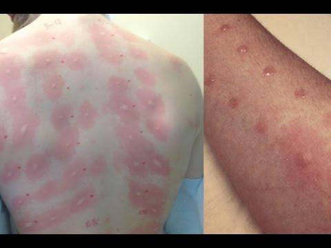 Allergies, hindi dapat ipagsawalang-bahala – skin experts