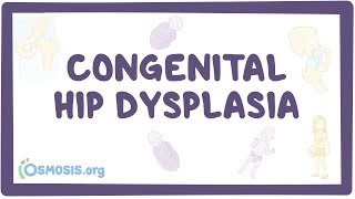 Congenital hip dysplasia - causes, symptoms, diagnosis, treatment, pathology Video