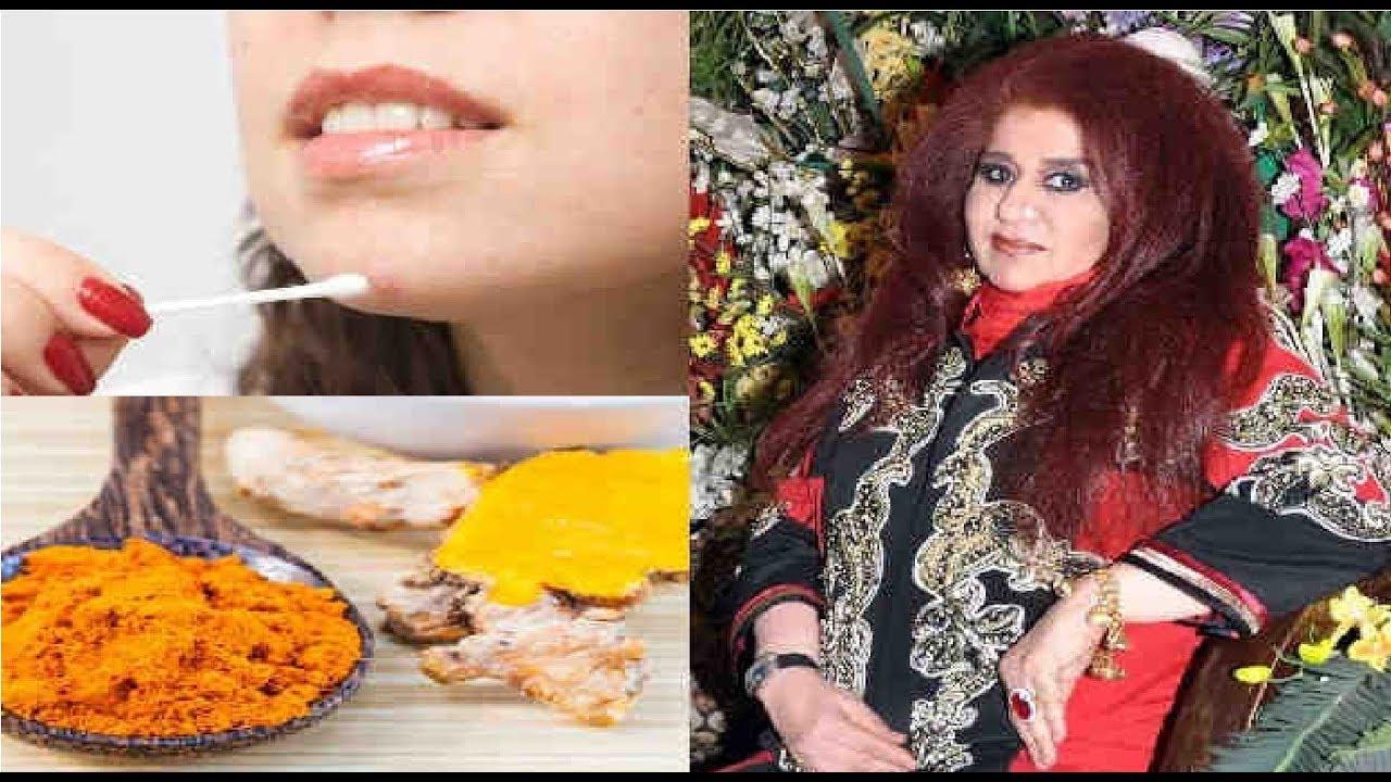 अगर पिंपल्स और उनके निशान कर रहे हैं परेशान तो अपनाएँ शहनाज हुसैन के ये Pimple Removal Beauty Tips