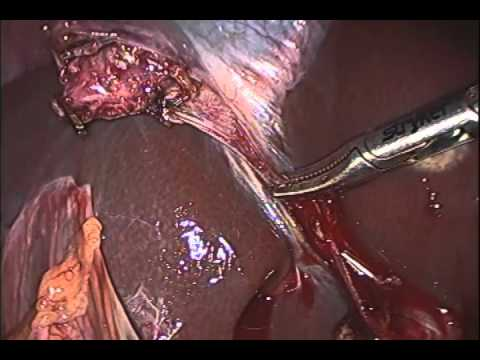 Lap Cholecystectomy  By Dr Anil Kumar, Assist Professor at AIIMS-Patna