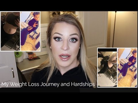 My Weight Loss Journey and Hardships  Cara Edwards