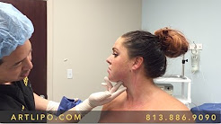 Chin, Neck, Jowls Liposuction | Facelift Alternative | Tampa, Florida, USA - 1 | Expert Dr. Su