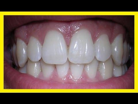 Como Clarear Os Dentes Dicas Para Clarear Os Dentes Em Casa