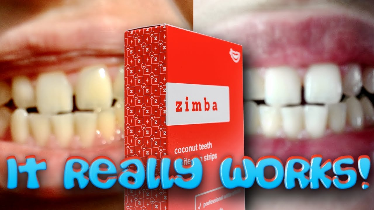 Zimba Teeth Whitening Strips Crazy Transformation I Tried It For