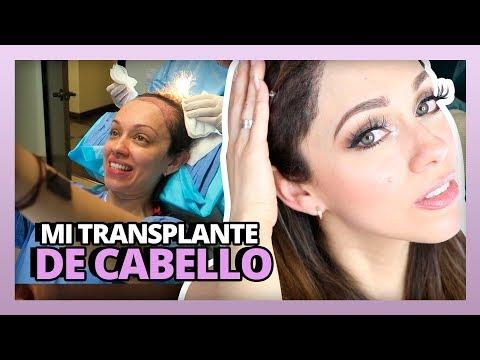 MI TRANSPLANTE DE CABELLO | HAIR TRANSPLANT SURGERY | #RosyStoryTime