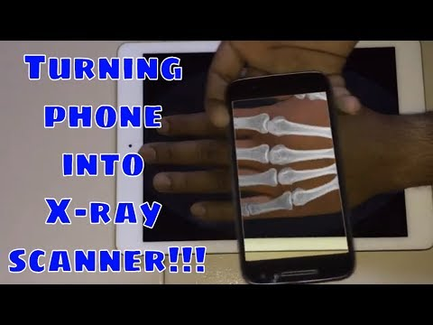 Turning Phone Into X-ray Scanner To See Hand Bones!