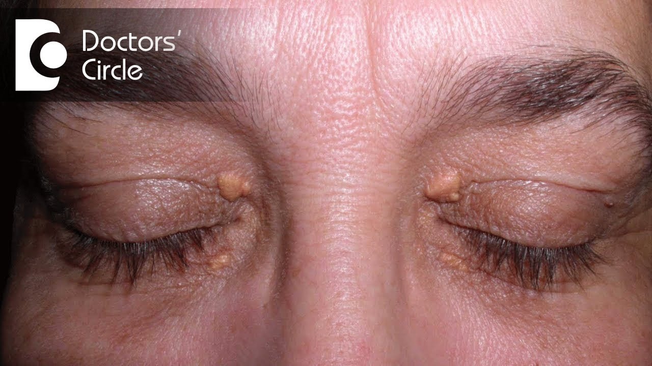 How To Get Rid Of Skin Tags From Upper Eyelids Or Eye Region Dr