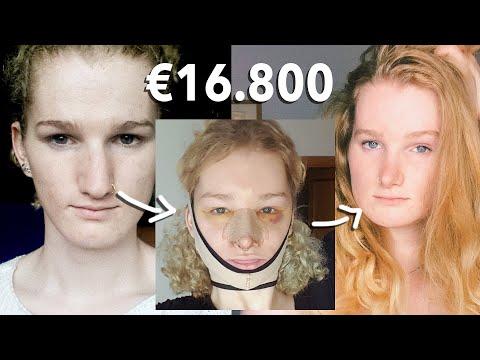 Mijn Plastische Chirurgie Verhaal! (FFS) - met foto's!