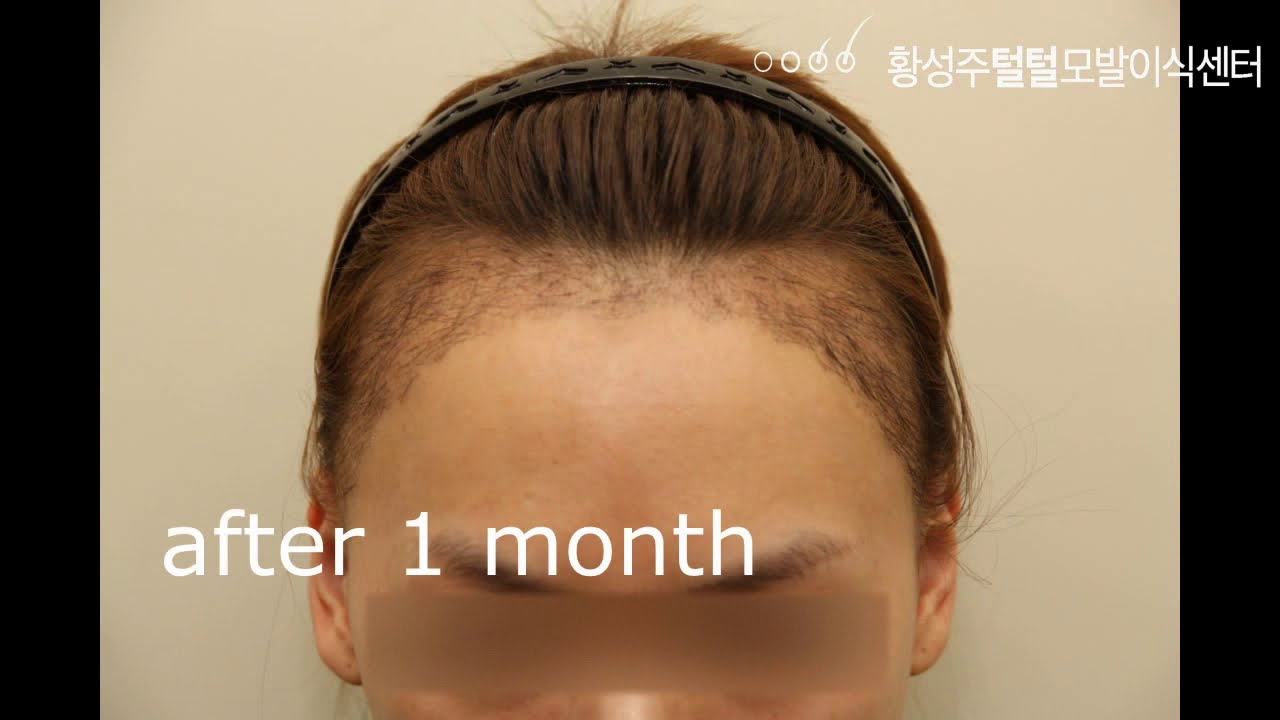 헤어라인교정 모발이식 수술전부터 15년까지 모습(hair transplant korea)