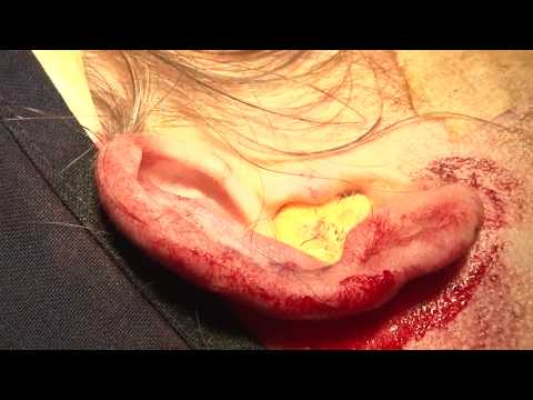 Otoplasty (Ear Surgery) by Dr. Sanjay Parashar at Cocoona Centre Dubai, New Delhi