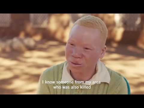 Protect People Living With Albinism in Malawi and Tanzania