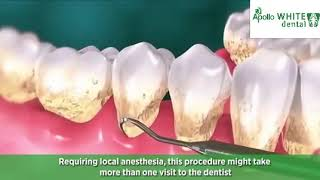 Teeth Scaling and Root Planning at Apollo White Dental
