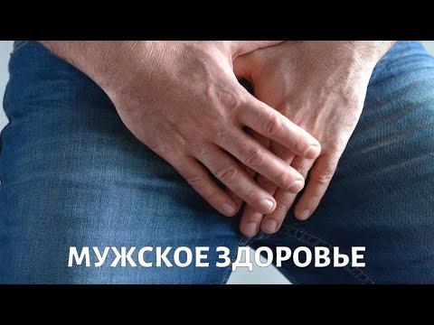 Мужские урологические заболевания: симптомы. Уролог Искандер Адбуллин