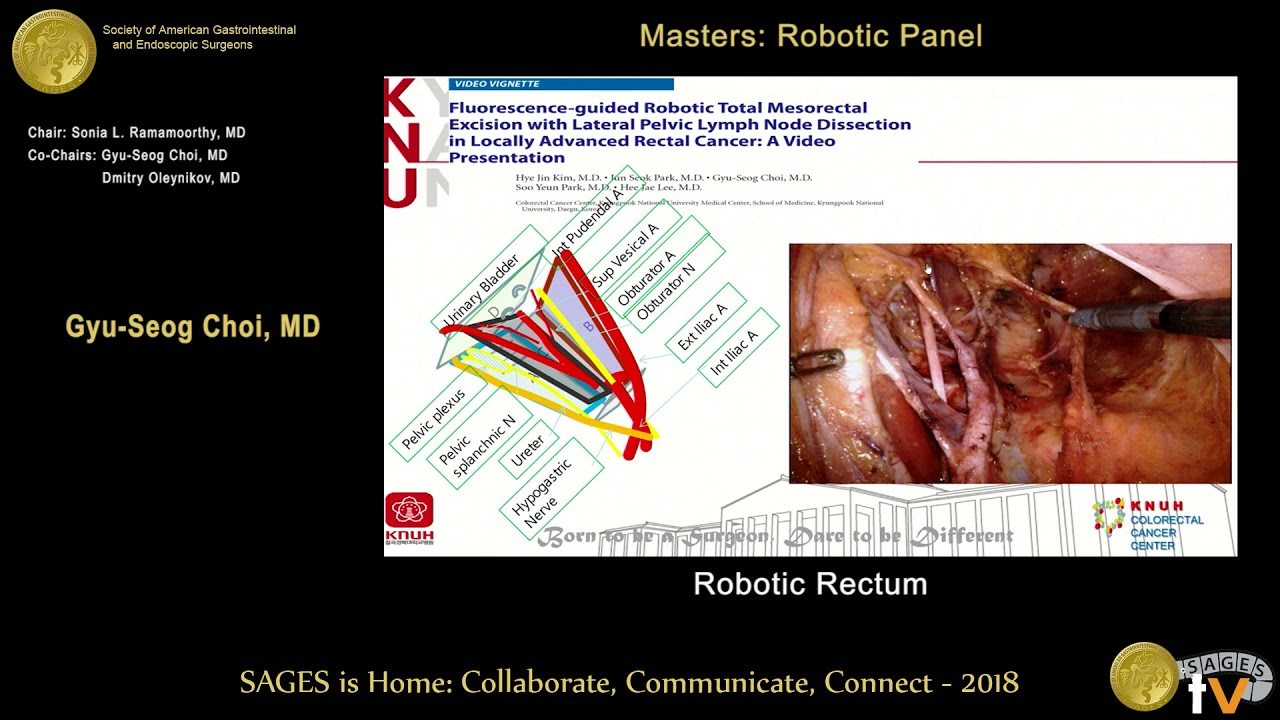 Robotic Rectal Cancer Surgery From The Sages Video Library