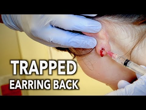REMOVING A TRAPPED EARRING BACK (from inside the earlobe) | Dr. Paul