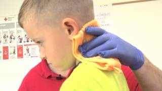 Nasenbluten bei einem Kind