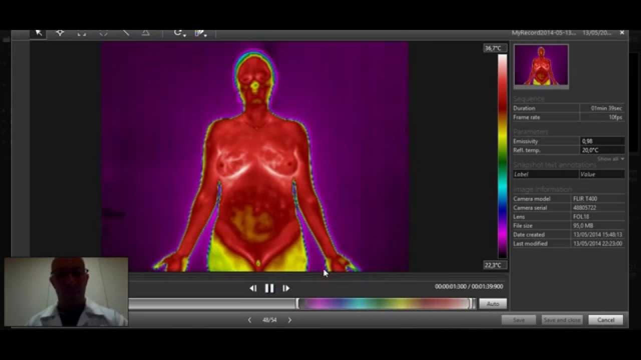 Diagnóstico Clínico com Câmera Termográfica