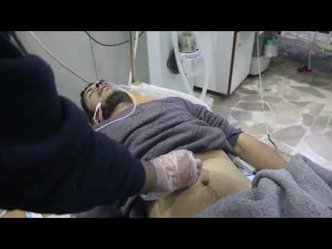 Food poisoning in Zamalka - Ghouta