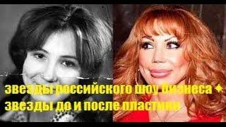 как реально выглядели✦ звезды российского шоу бизнеса✦ звезды до и после пластики