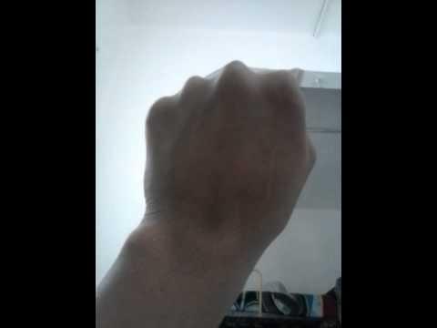 Movimiento involuntario de los nervios de mi mano - YouTube