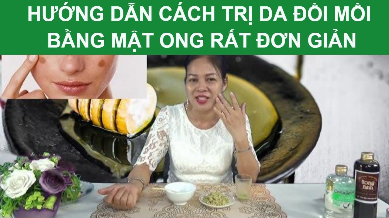 Hướng dẫn cách trị Da đồi mồi bằng Mật ong rất đơn giản bởi Health Coach La Yến