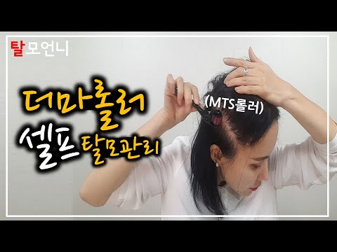 [eng_sub]-i-treat-my-own-hair-loss!-#8:-how-to-use-derma-roller-on-yourself!---talmosister