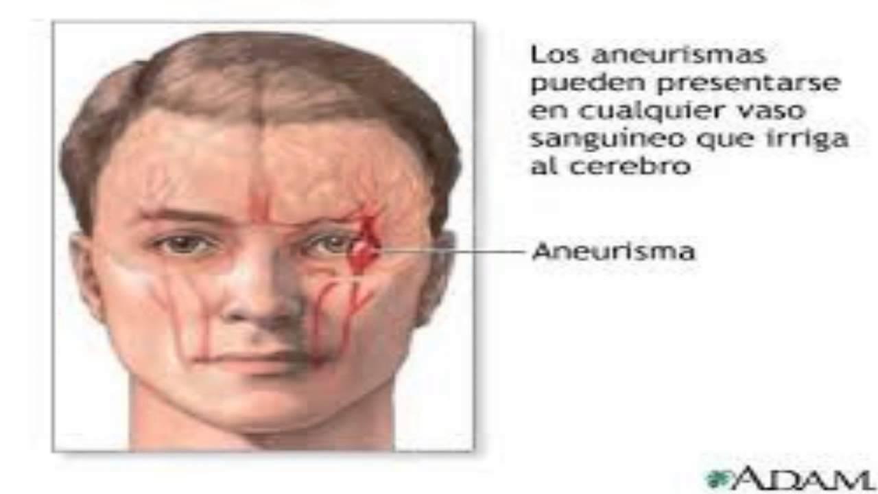 sintomas aneurisma cerebral que es