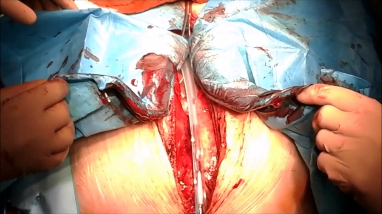 STERNUM GUARD REMOVAL - YouTube