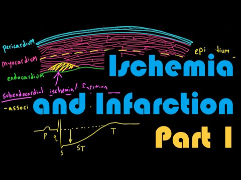 Ischemia, Infarction, and the Waveforms Q through U, Part 1: How to Read an EKG Curriculum
