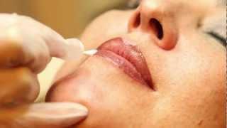 Yass&Co - Micropigmentación Labios Thumbnail