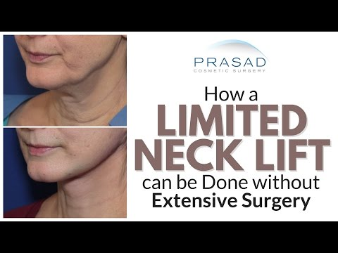 Why Best Neck Lift Results Require Surgery, but a Limited Lift can be Done Without Extensive Surgery
