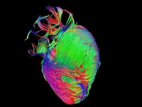 Diffusion tensor imaging (via MRI) of the heart