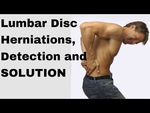 How to fix a herniated disc in the lumbar spine