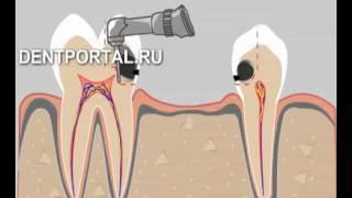 Мостовидное протезирование зубов(, 2014-01-10T20:11:59.000Z)