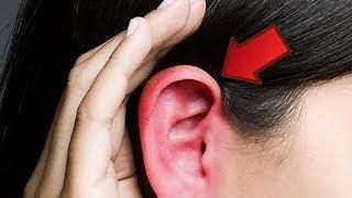 Vermelhas quentes orelhas queimando