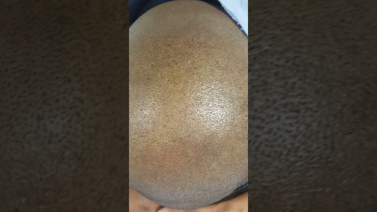 Healed 1st session Scalp Micropigmentation SMP by El Truchan @ Perfect Definition