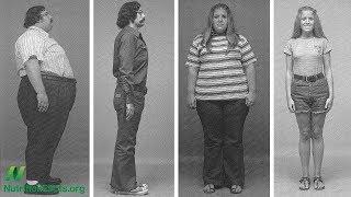 Lze zvrátit morbidní obezitu dietou?