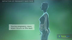 Pregnancy back pain Definition