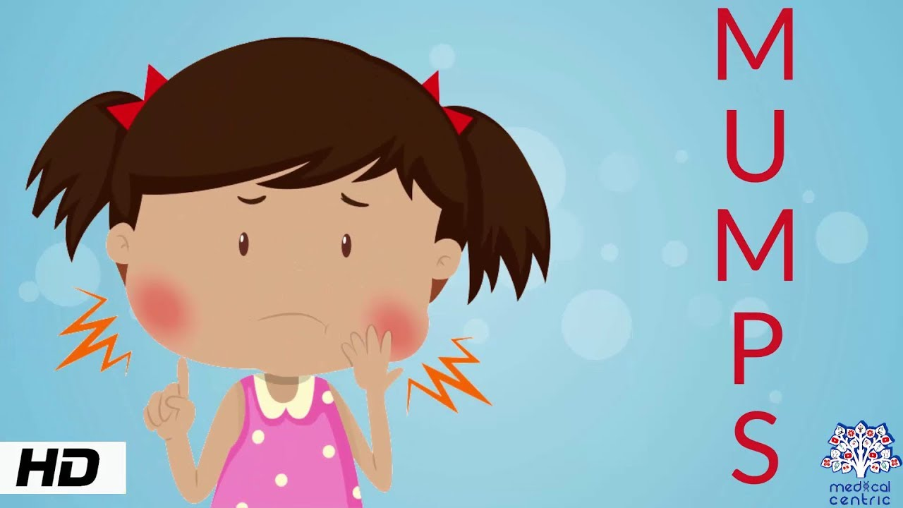 Mumps, Causes, Signs and Symptoms, Diagnosis and Treatment.