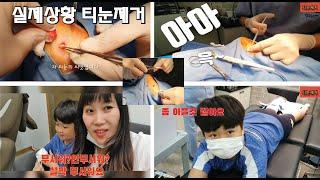 티눈제거!티눈제거중비명 티눈수술영상공개