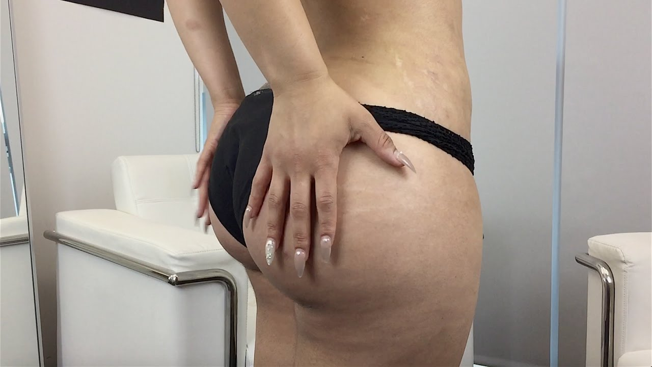 Best Brazilian Butt Lift Results! Beverly Hills Plastic Surgeon and Patient