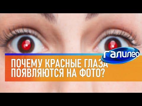 Галилео | Красные глаза 📸 [Red Eyes]