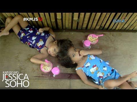 Kapuso Mo, Jessica Soho: Ang conjoined twins ng Palawan