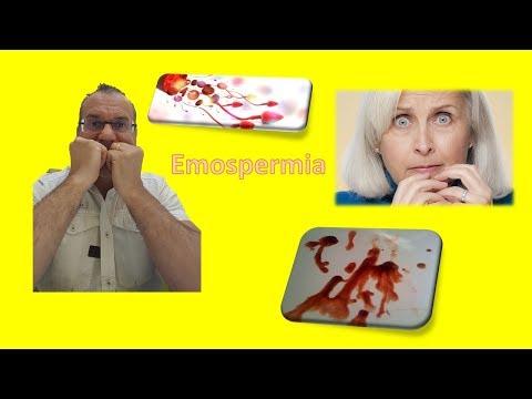 indebolimento dellerezione e prostatite