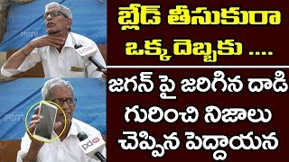 Common Man Fire On AP CM Chandrababu | Ys Jagan Attack Issue | AP 2019 Elections | PDTV News