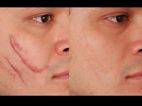 Elimina Las Cicatrices De Cualquier Parte De Tu Cuerpo En