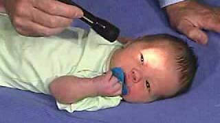 徴候 スカーフ 子どもの低緊張(筋緊張低下症)とは?フロッピーインファントの具体的な症状、治療法、相談先について【LITALICO発達ナビ】