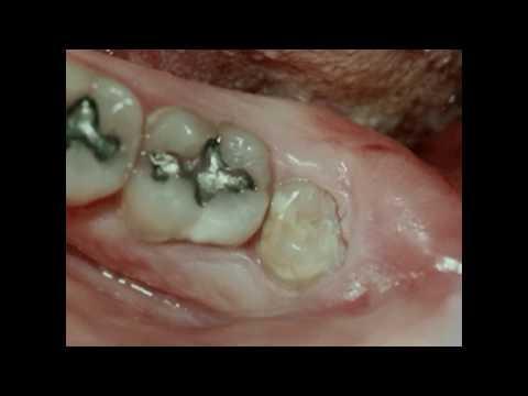 pericoronitis- -lake-merritt-dental,-oakland,-ca